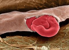 Ruptured capillary. Coloured scanning electron micrograph (SEM) of a red blood cell squeezing out of a torn capillary. A capillary is the smallest type of blood vessel, often only just large enough for red blood cells to pass through. Red blood cells (erythrocytes) are biconcave, disc-shaped cells that transport oxygen from the lungs to body cells. Credit: STEVE GSCHMEISSNER/SCIENCE PHOTO LIBRARY