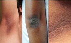 Chi di voi vorrebbe sbarazzarsi facilmente di quelle orribili chiazze più scure sulla pelle di collo, ascelle, gomiti e ginocchia?Siete nel posto giusto, a partire da oggi questo non sarà più un problema per voi.&nbsp...