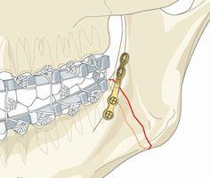 Die versorgung einer Kieferfraktur im Unterkiefer mit Schuchardt Schiene und Miniplattenosteosynthese