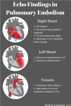 Echocardiography can aid in the diagnosis of pulmonary embolism and provides important functional information that cannot be ascertained from other tests. Vascular Ultrasound, Ultrasound Sonography, Ultrasound Tech, Cardiac Sonography, Medical Anatomy, Cardiac Anatomy, Human Anatomy, Student Info, Cardiac Nursing