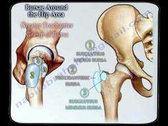 Ebraheim's educational animated video describes the bursae / bursitis around the hip joint. There are multiple bursae located around the hip joint. Gluteal Muscles, Psoas Muscle, Iliotibial Band Syndrome, Greater Trochanter, Bursitis Hip, Hip Injuries, Referred Pain, Gluteus Medius, Tight Hip Flexors
