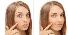 el mejor remedio para el acne