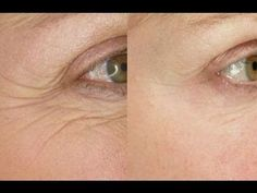 Smooth Eye Wrinkles With This Easy 5 Minute Face Massage | BestandSmartChoice.Com