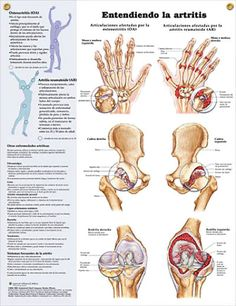 Arthritis: Entendiendo la artritis SPANISH (español) anatomy poster illustrates main joints affected by Osteoarthritis and Rheumatoid Arthritis. Skeletal system chart for doctors and nurses.