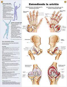 Entendiendo la artritis Cartel ilustrativo sobre las  principales articulaciones afectadas por la artrosis y la artritis reumatoide.
