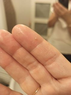 [Misc] Omg I am so excited - someone recently posted about the Fifty Shades of Snail Grit Method for removing sebaceous filaments so I tried it tonight and IT WORKS! link in comments - SkincareAddiction Sebaceous Filaments, Nose Strips, Makeup Wipes, Why Do People, Fifty Shades, Snail, Link, Internet, Community