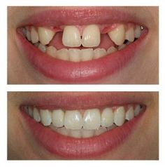 A great result with dental implants