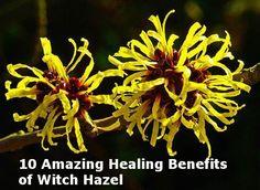 http://www.undergroundhealth.com/witch-hazel-10-amazing-healing-benefits/