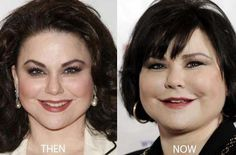 Delta Burke Plastic Surgery Bad Dreams
