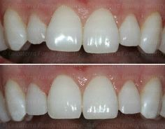 Before and after photos of esthetic re-shaping of poorly shaped incisor teeth. Dental Photos, Teeth Shape, Dental Services, Shapes, Orange