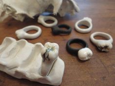 porcelain tooth rings with or without decay!