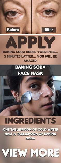 Apply Baking Soda Under Your Eyes… 5 Minutes Latter… You Will Be Amazed!