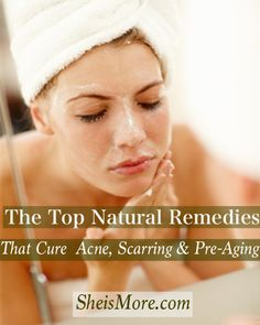 The Top Natural Remedies That Cure Acne, Scarring and Aging | She is MORE