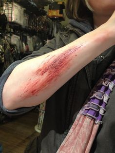 First time doing road rash makeup. By TaylorG Bruises Aesthetic, Gore Aesthetic, Death Aesthetic, Aesthetic People, Aesthetic Grunge, Fake Wounds, Cuts And Bruises, Sad Life, Special Effects Makeup