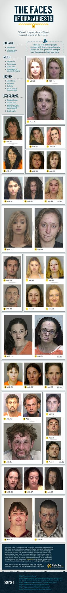 These Photos Show How Heroin, Cocaine and Oxycodone Change Your Appearance Over Time