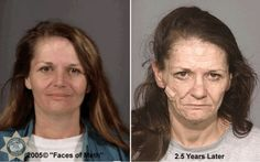photo gallery of what crystal meth does to people's faces.  This is a photo of a woman 2.5 years after being a c.m. addict.