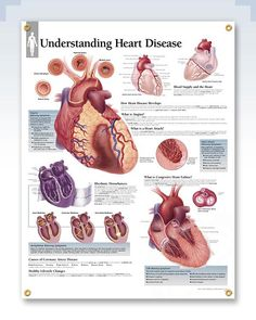 Ischemic Heart Disease, Heart Health Month, Cardiac Nursing, Surgical Nursing, Nursing Career, Medical Dental, Medical Laboratory, Medical Humor, Medical Science