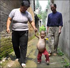 Foetus in Foetu
