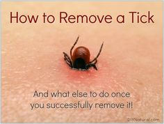 How to Remove A Tick: What to Do Right Away Once You've Been Bitten