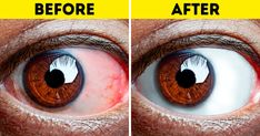 8 Exercises All People With Tired Eyes Need to Do