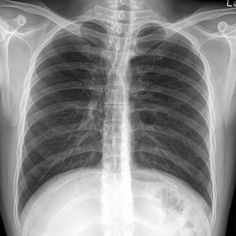 Ectopia cordis interna, also known as Tin Man syndrome, is a rare variant form of ectopia cordis in which the heart is located completely within the abdominal cavity. It is almost always an asymptomatic condition found incidentally on imaging, or less often detected by physicians when attempting to auscultate the chest or at abdominal palpation. SEE CASE: http://goo.gl/GB8AV5