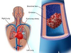 When a blood clot occurs in the lungs, it is known as a #pulmonaryembolism and is very serious condition.