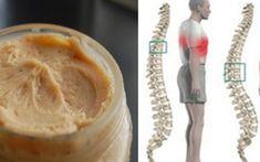 Cel mai puternic tratament împotriva durerilor de spate  ! Hummus, Camembert Cheese, Peanut Butter, Pudding, Ice Cream, Healthy Recipes, Ethnic Recipes, Desserts, Food