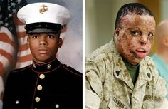 RIP Marine Sgt. Merlin German has died due to complications from surgery, three years after he was horribly injured by an IED in Iraq. God bless each and every soldier risking his/her life everyday. <3