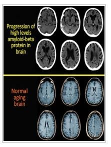 Down Syndrome Study Sheds Light on Alzheimer's  - pinned by @PediaStaff – Please Visit ht.ly/63sNtfor all our ped therapy, school & special ed pins
