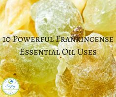 Amazing Frankincense essential oil uses, covering everything from making you a healthier person to relieving stress and maintaining your oral hygiene.