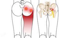 Hip Pain Relief, Sciatica Pain Relief, Sciatic Pain, Sciatic Nerve, Piriformis Exercises, Sciatica Stretches, Pelvic Floor Exercises, Hip Stretches, Massage