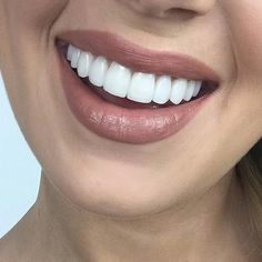 Improve your facial appearance by porcelain dental veneers in Chandler, AZ. We provide you a natural look by the long lasting porcelain veneers. Veneers Teeth, Dental Veneers, Photos Corps, Perfect Smile Teeth, Teeth Whitening Procedure, Whitening Kit, Get Whiter Teeth, Beautiful Teeth, Health Care