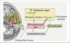 masticator space anatomy - Google Search Anatomy, Space, Google Search, Floor Space