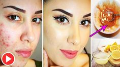 This Trick Really Work Like Magic For Pimples And Blackheads - How To Remove Pimple In One Day