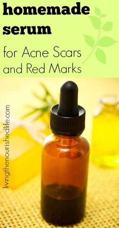 Homemade Serum for Acne Scars and Red Marks made with frankincense, lavender, and lemon essential oils.  www.onedoterracommunity.com   https://www.facebook.com/#!/OneDoterraCommunity