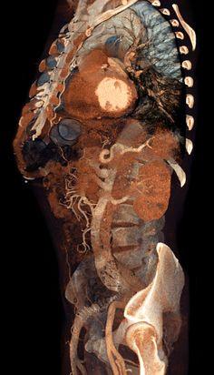 Volume Rendering CT scans by voxel123