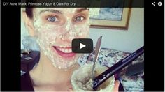 DIY Acne Mask:  Primrose Yogurt & Oats For Dry, Sensitive Skin! Natural At Home Tutorial & Recipe |  Cassandra Bankson talks about her acne treatment choice, AcnEase