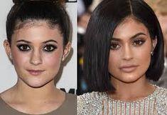 Antes e depois: 2012 e 2016 (Foto: Chelsea Lauren e Neilson Barnard / Getty Images ) Kendall Jenner, Pixee Fox, Kim Kardashian, Glamour, Surgery, Chelsea, Make Up, Instagram, Perfect Lips