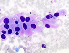 Signed out as PTC with atypical features. Had a lot of matrix and lots of inclusions. The matrix material described above is the cytologic correlate with the abundant extracellular hyaline substance seen in histologic sections. The matrix could easily be confused with amyloid which raises the possibility of medullary thyroid carcinoma (MTC), which can have intranuclear pseudoinclusions. Clues in this case that PTC was not the diagnosis included the presence of the matrix material and the…