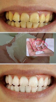 Logras dientes blancos y saludos gracias a este remedio simple de hacer en casa.