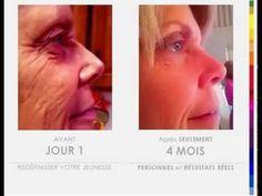 Résultats cliniques, photos et vidéos Luminesce et Instantly Ageless | Jeunesse Global Franco