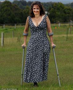 woman on crutches Crutches, Legs, Ol, Woman, Dresses, Fashion, In Love, Vestidos, Moda