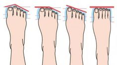 Kunnen voeten ons iets over onze persoonlijkheid vertellen? Ja, dat blijkt zo te zijn! Uit de vorm van de voeten en de grootte van de tenen, kunnen we veel interessante dingen opmaken. Kijk maar tot …