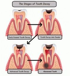 Diagram showing the progression of gum disease periodontal disease the stages of tooth decay ccuart Gallery