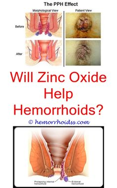 3 Healed Simple Ideas: Can You Use Hemorrhoid Cream On Dogs Anul Glands? when is surgery required for hemorrhoids?.Why Do My Hemorrhoids Flare Up During My Period? how to keep hemorrhoids inside?.Should You Pop A Hemorrhoid?..