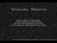 Persistent Migraine Aura and Visual Snow? - Headache and Migraine News Migraine Cause, Migraine Triggers, Chronic Migraines, Chronic Illness, Chronic Pain, Visual Snow, Snow Gif, Snow Effect, Fun Facts About Yourself