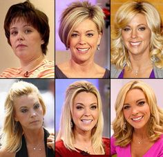 Kate Gosselin Plastic Surgery: Has Had A Facelift & Nose Job - Panissue Share Botched Plastic Surgery, Bad Plastic Surgeries, Plastic Surgery Gone Wrong, Plastic Surgery Photos, Celebrity Plastic Surgery, Kate Gosselin Plastic Surgery, Contour, Under The Knife, Celebrities Before And After