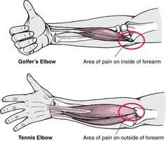 An effective selftreatment for Tennis Elbow Rehab Tendinitis
