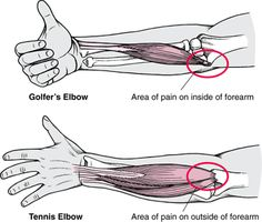 Elbow Injuries: Golf elbow (inside) vs tennis elbow (outside) Sports Injuries: Merck Manual Home Edition
