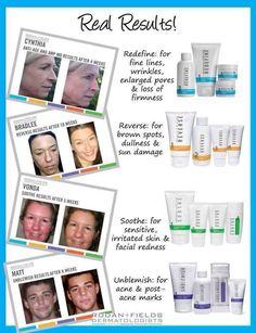 Frustrated with your skin issues???  Try our Rodan and Fields products and get on your way to beautiful skin today.  Guaranteed to help with your skin issues!!  60-day money-back guarantee if not completely satisfied!!
